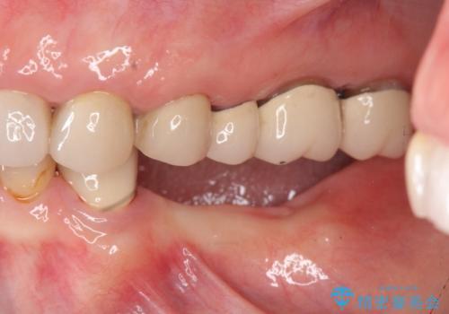 歯を失い噛めない、インプラントによる咬合機能回復の治療前
