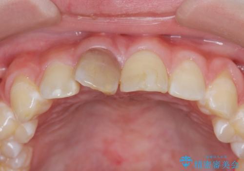 前歯をきれいにしたい ジルコニアクラウンによる審美治療の治療前