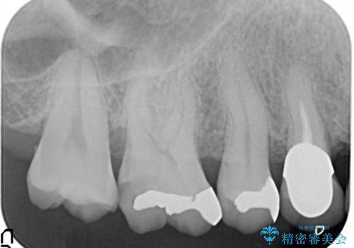 セラミッククラウンによるむし歯治療の治療前