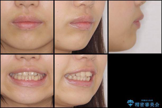 デコボコで飛び出した前歯をきれいに インビザラインによる矯正治療の治療前(顔貌)