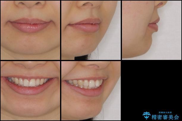 口が閉じにくい 1本飛び出した前歯の矯正治療の治療前(顔貌)
