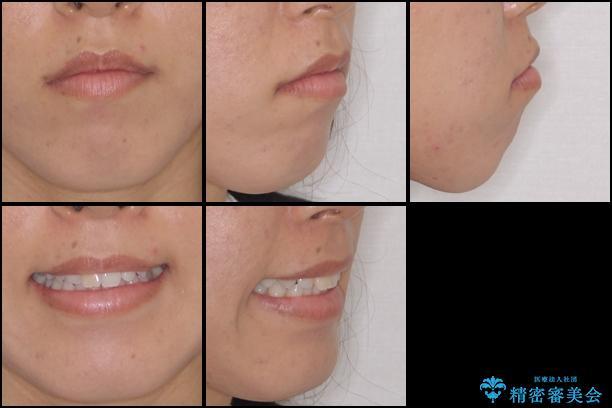 前歯の叢生を治したい インビザラインによる矯正治療の治療前(顔貌)
