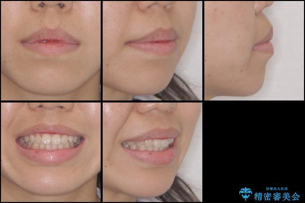 前歯のデコボコを治したい インビザラインによる矯正治療の治療前(顔貌)