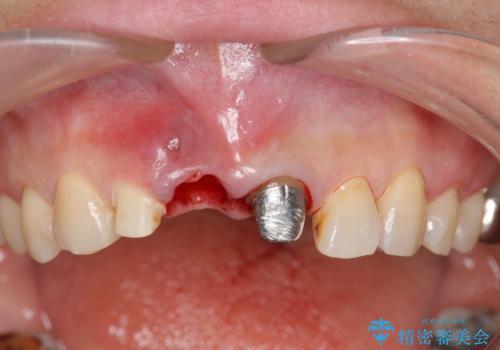 [ 前歯が割れた ] ブリッジによる審美回復治療の治療中