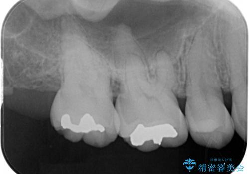 むし歯の治療。 ゴールドインレーによる修復の治療前