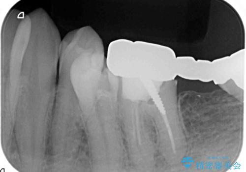 最後方臼歯のインプラント補綴の治療前