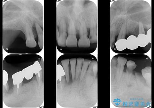虫歯だらけ、歯周病 崩壊した口腔の再建 フルマウスリコンストラクションの治療前