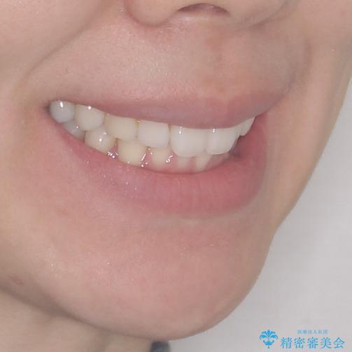 矯正治療の後戻りをインビザライン・ライトで改善の治療前(顔貌)