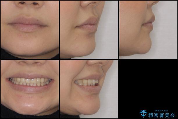 インビザラインによるディープバイトの改善の治療後(顔貌)