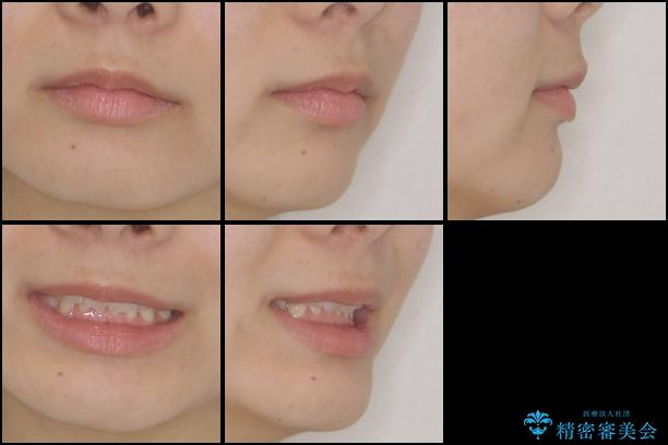 インビザラインによる前歯の矯正治療の治療後(顔貌)