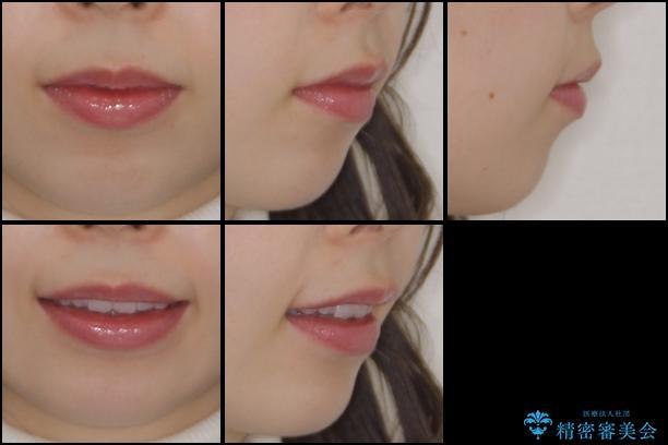 デコボコと深い咬み合わせの改善 インビザラインによる矯正治療の治療後(顔貌)