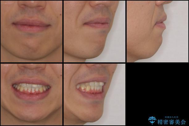 前歯の歯並びとクラウンを改善 インビザラインとオールセラミックの治療後(顔貌)