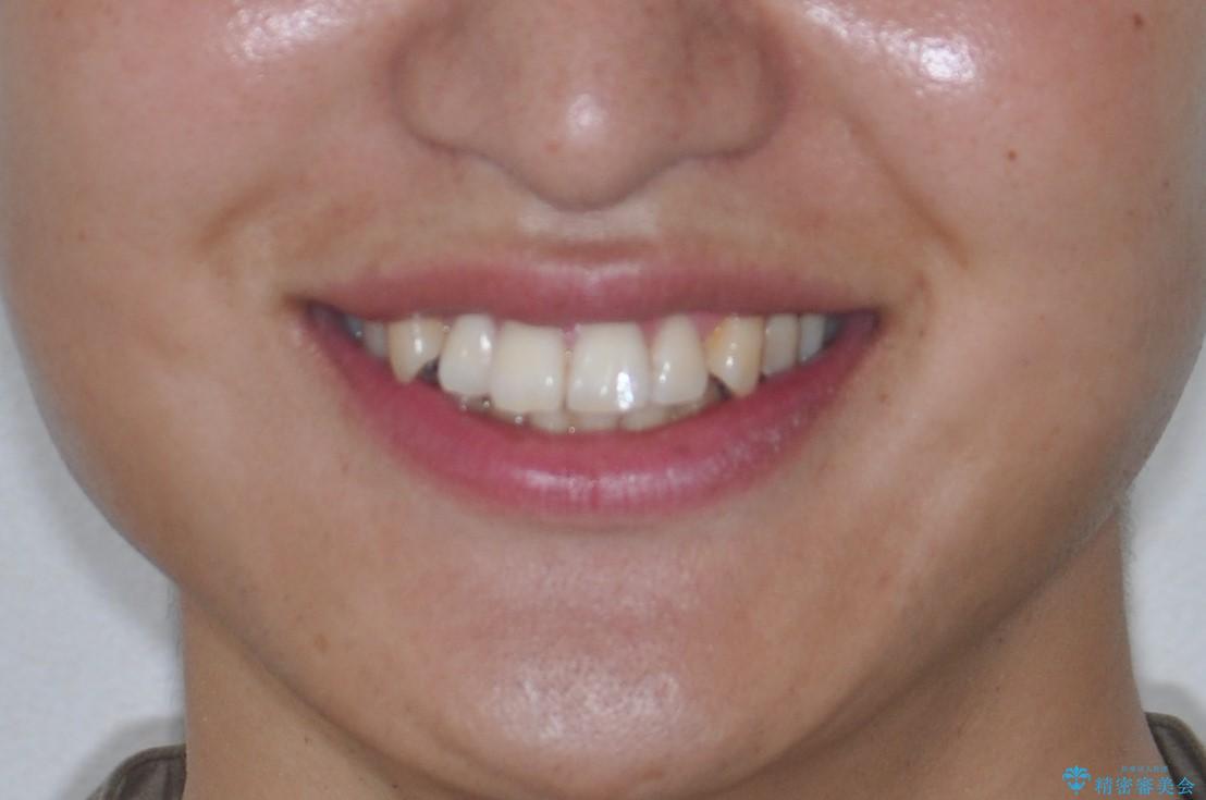 前歯の凸凹をきれいにしたい。インビザラインによる治療の治療前(顔貌)