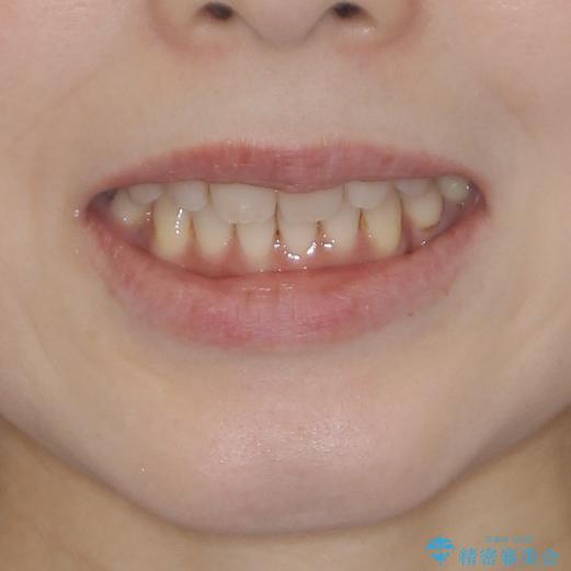 軽度な歯列不正 インビザライン・ライトによる矯正治療の治療後(顔貌)