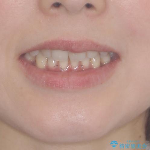 軽度な歯列不正 インビザライン・ライトによる矯正治療の治療前(顔貌)