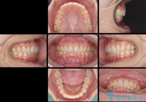 インビザラインによる前歯の矯正治療の治療後