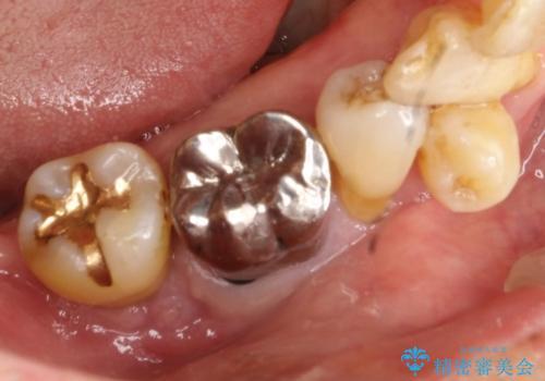 歯周病にて保存不可能な歯をショートインプラントで回復するの治療前