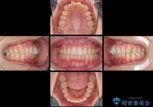 インビザラインによる前歯の矯正治療の治療中