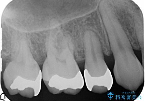 笑ったら銀歯が見える。 セラミックインレーによる治療の治療前