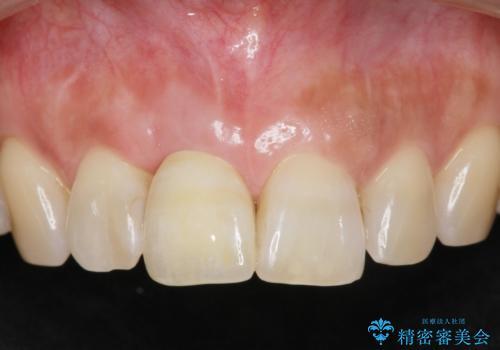 前歯 インプラントによる欠損補綴の治療後