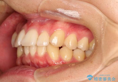 前歯の凸凹をきれいにしたい。インビザラインによる治療の治療前