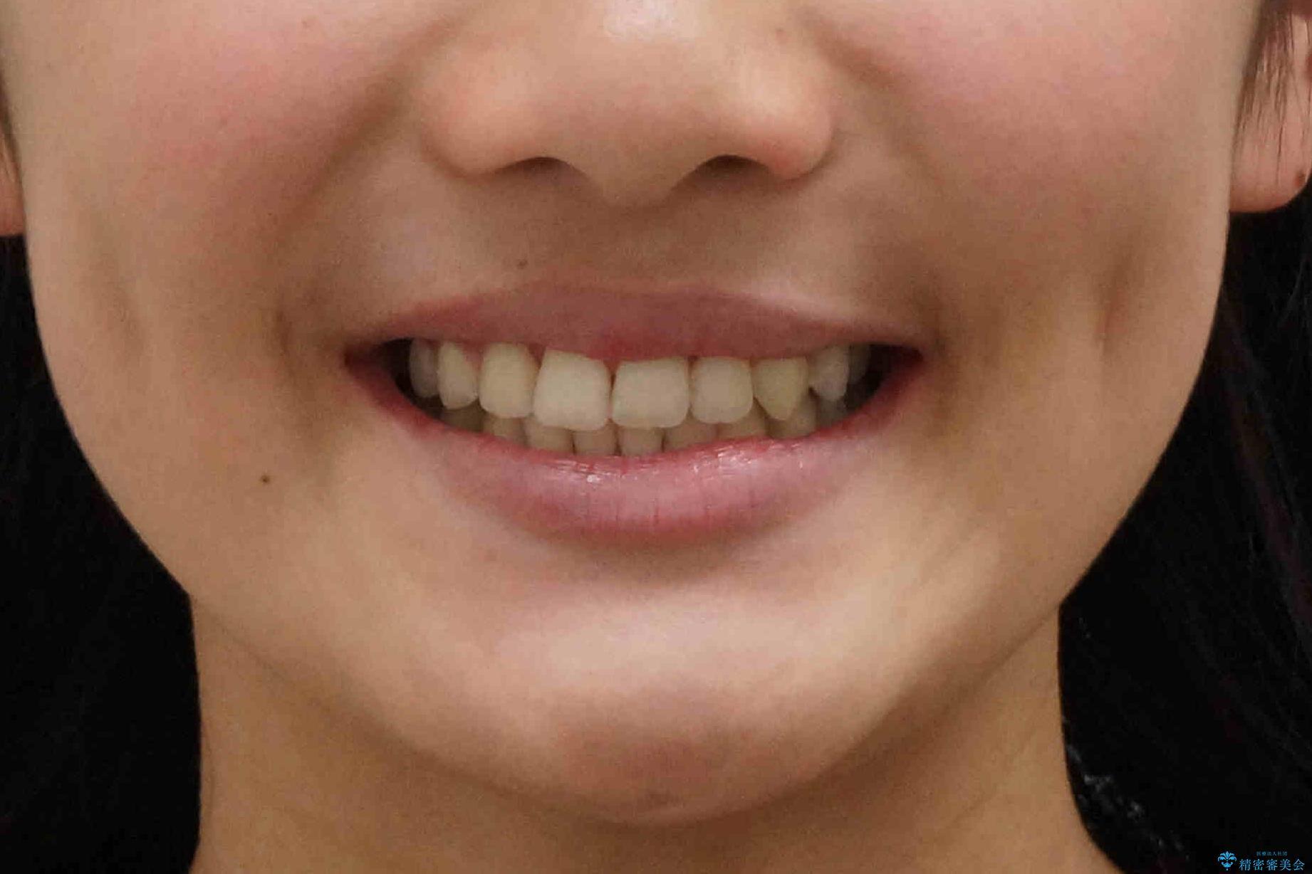 埋まっている犬歯を抜歯して、歯列矯正の治療後(顔貌)