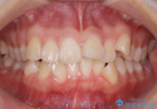 成人式に間に合う 前歯の矯正の症例 治療前
