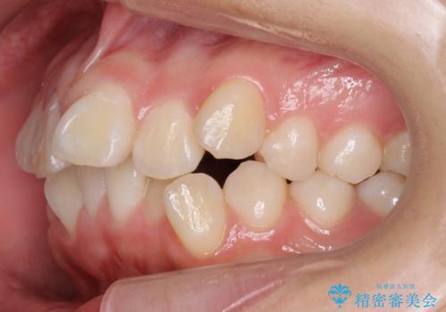 成人式に間に合う 前歯の矯正の治療前