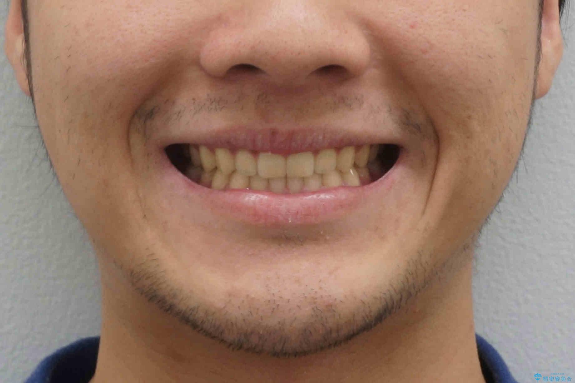 前歯のすきま 受け口 インビザラインでの治療後(顔貌)
