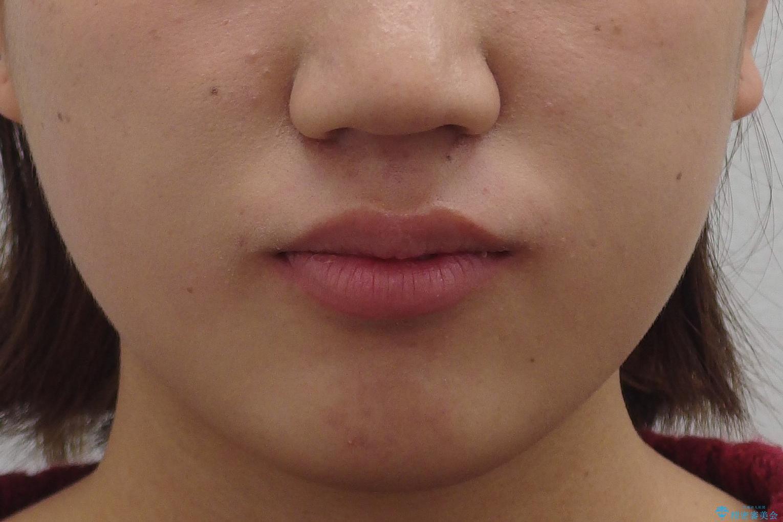 成人式に間に合う 前歯の矯正の治療前(顔貌)