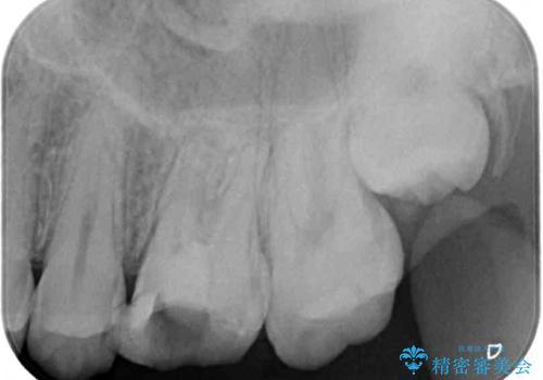 根管治療中の転院 奥歯のオールセラミック治療の治療前