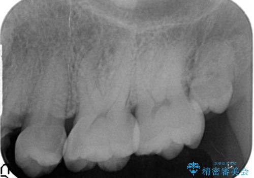 大きな虫歯で崩壊した歯の修復の治療前