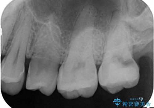 奥歯が痛い! 中途半端な治療をしっかりとやり治すの治療前