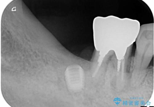 歯周病にて保存不可能な歯をショートインプラントで回復するの治療中