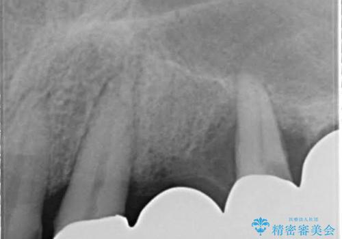 歯周病におかされた前歯の再建治療の治療前