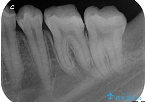 歯冠長延長術を併用した審美的セラミック治療の治療前