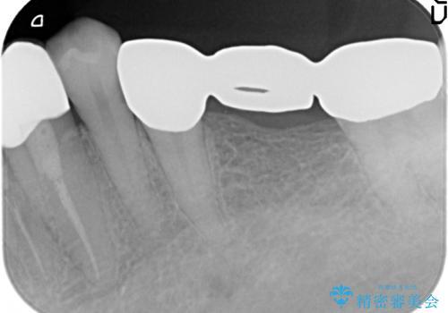 オールセラミッククラウン 銀歯を白い歯への治療前