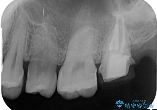 奥歯が痛い! 中途半端な治療をしっかりとやり治すの治療中