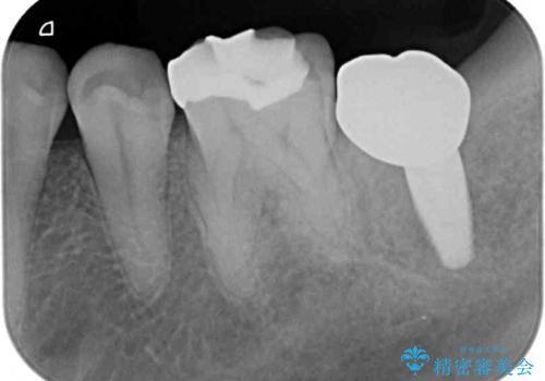 割れてしまった奥歯 インプラントによる咬合回復の治療後