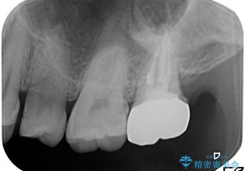 奥歯が痛い! 中途半端な治療をしっかりとやり治すの治療後