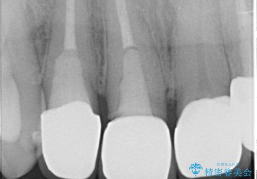 オールセラミッククラウン 土台ごと外れた前歯の補綴の治療前