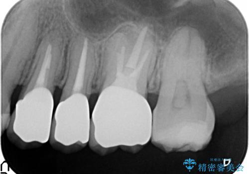 オールセラミッククラウン 根管治療・深い虫歯の治療の治療後