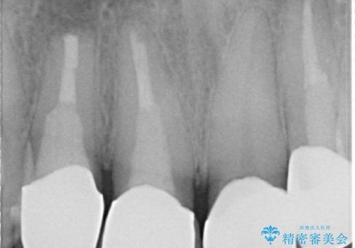 オールセラミッククラウン 土台ごと外れた前歯の補綴の治療後