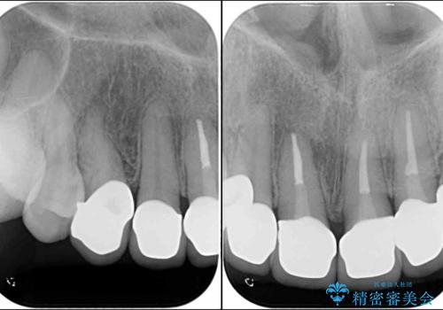 歯肉の高さをそろえたい 前歯の審美歯科治療の治療後