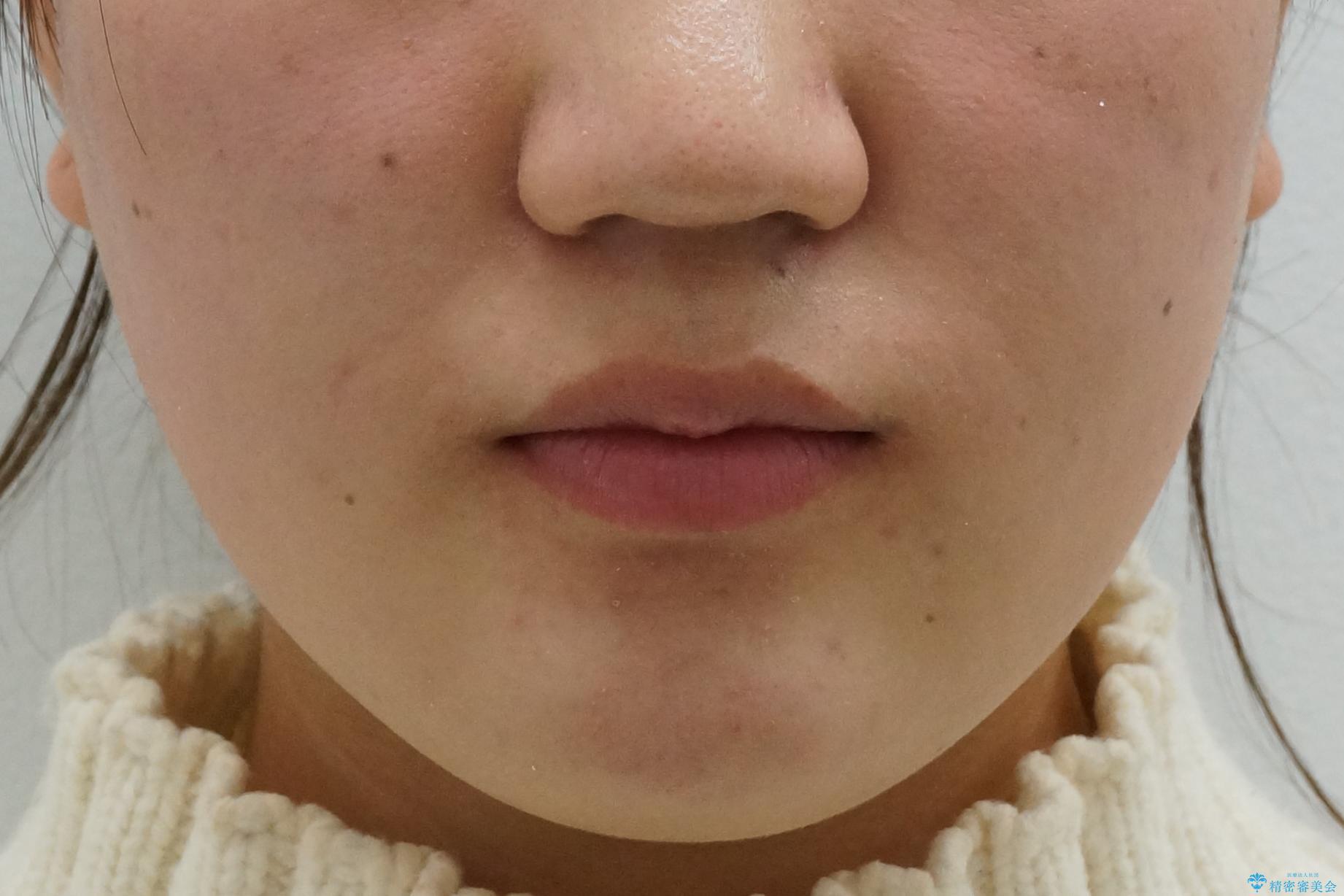 成人式に間に合う 前歯の矯正の治療後(顔貌)