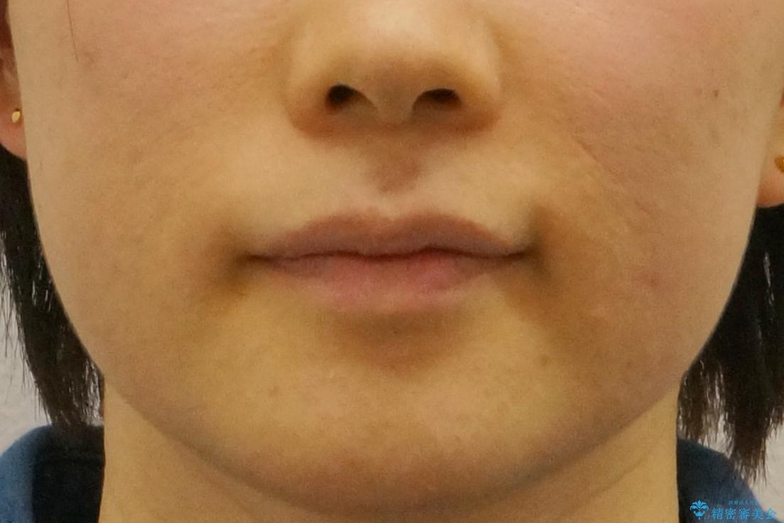 抜かない矯正 前歯がとび出ているのをマウスピースでの治療後(顔貌)