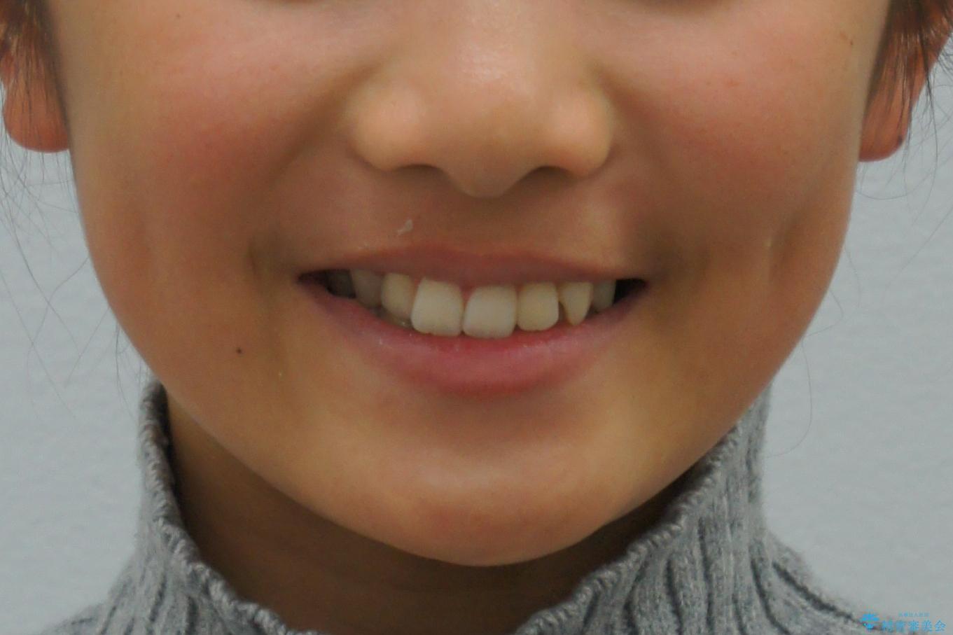 埋まっている犬歯を抜歯して、歯列矯正の治療前(顔貌)