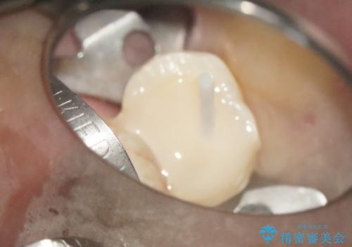 大きな虫歯で崩壊した歯の修復の治療中