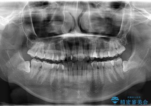 ハーフリンガル矯正 抜歯をして前歯を下げるの治療前