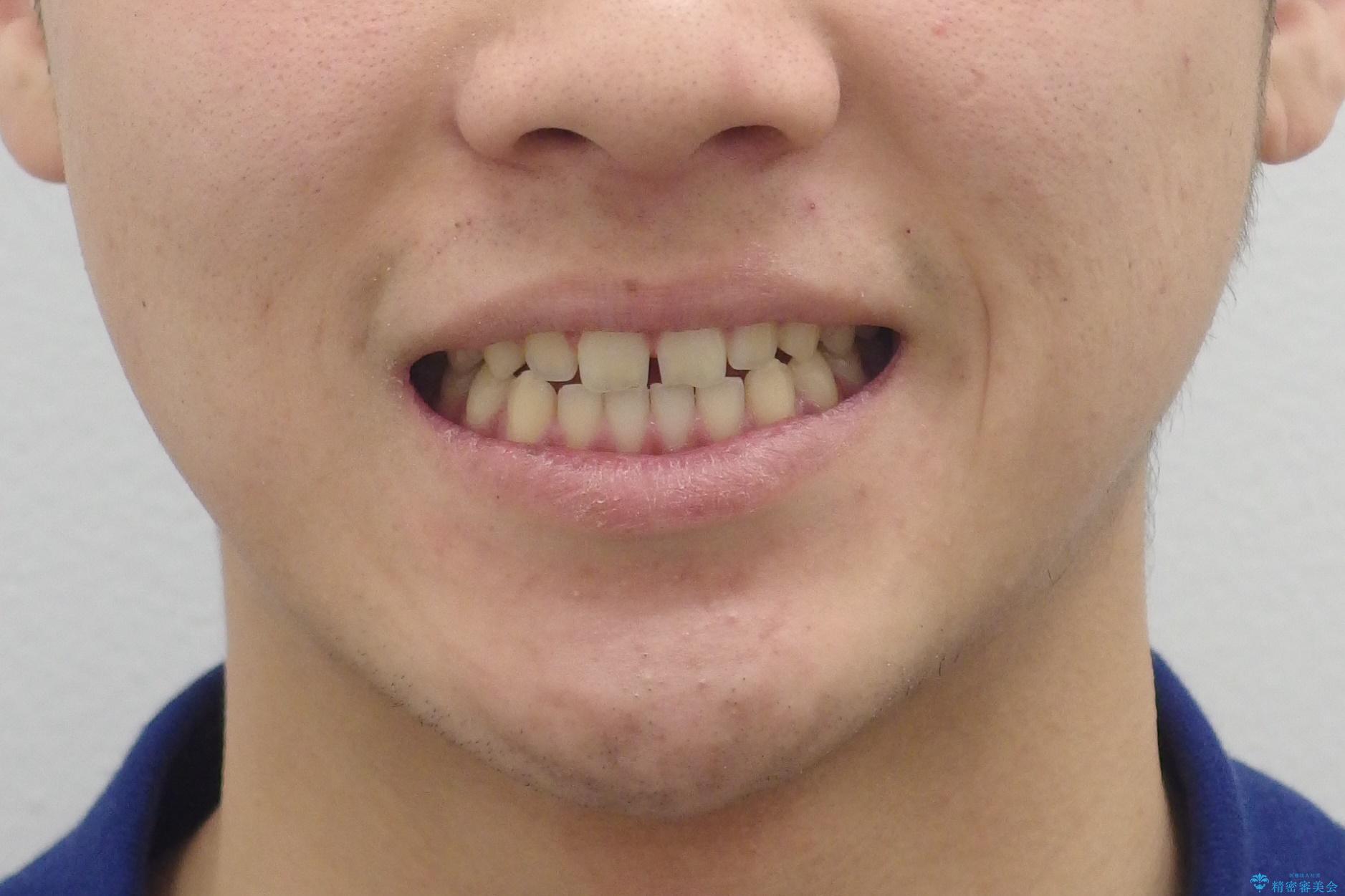 前歯のすきま 受け口 インビザラインでの治療前(顔貌)